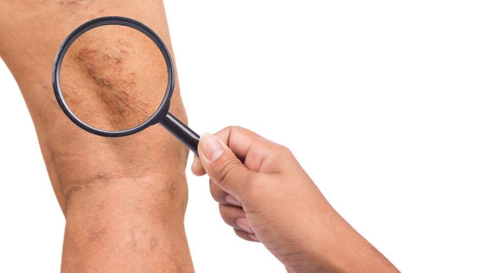 kŕčové žily v na nohách tehotenstve